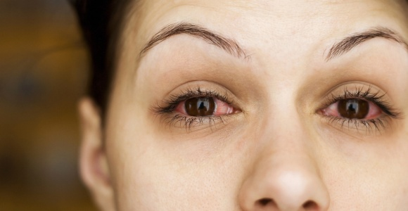 Woman with red eyes for wearing contact lenses too long